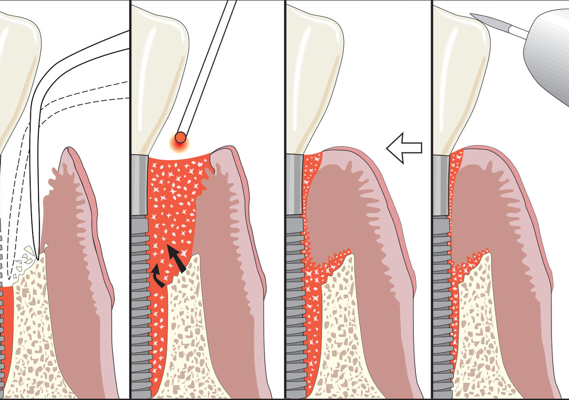 Laser-Assisted Periodontal Regeneration and Human Histology (#229)